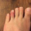 【さらに骨折?】薪を足指に落とした件