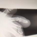 【薪運び中の事故】足の指の骨折がなかなか直らない件